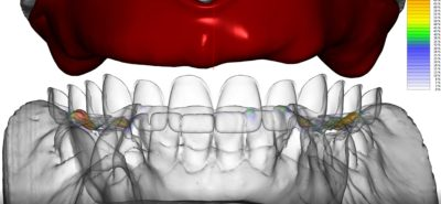 Dental CAD